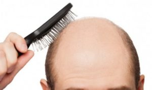 Cost of hair loss surgery abroad