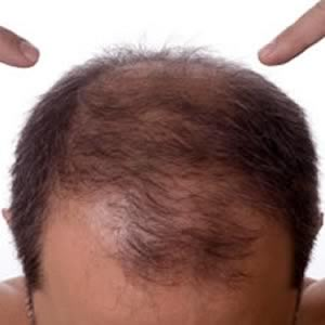 Hair loss tips tricks