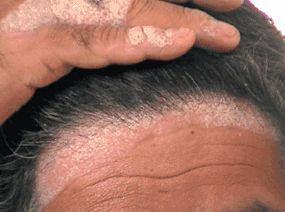 psoriasis on the scalp